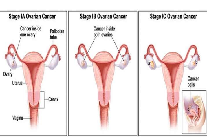 ovarian cancer kya hai)