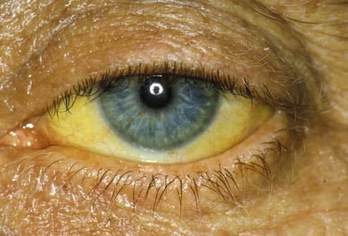 pancreatic cancer yellow eyes ce simptome ai cand ai viermisori