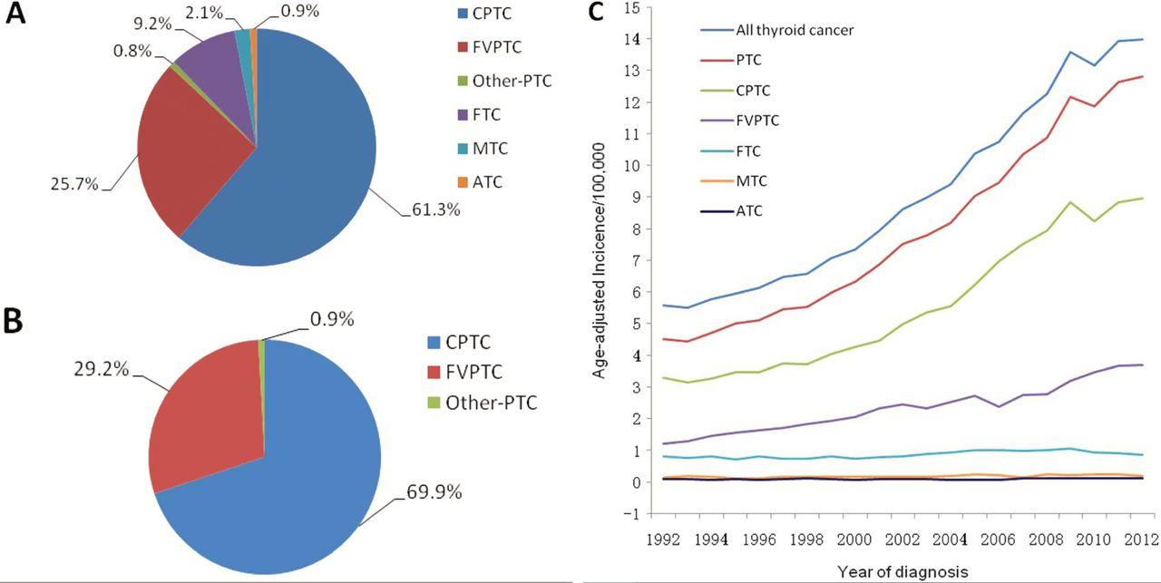 rectal cancer versus hemorrhoids enterobius vermicularis roundworm