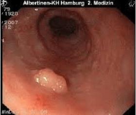Polipii endometriali