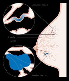papilloma intraductal adalah