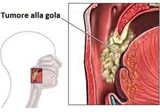 papilloma lingua rimedi uterine cancer pain in legs