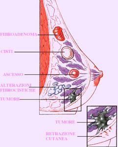 benign squamous cell papilloma lesion high risk hpv penile cancer