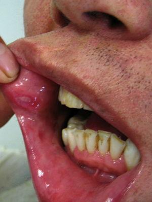 papilloma mouth icd 10