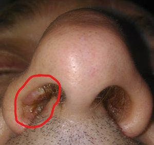 papilloma of nasal vestibule virus del papiloma en mujeres tratamiento