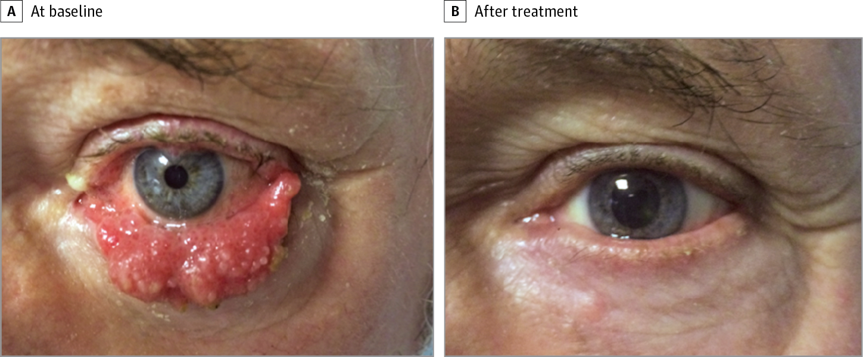 papilloma of right eyelid