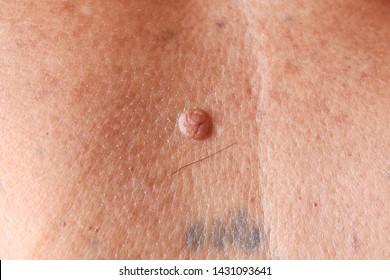 papilloma pelle