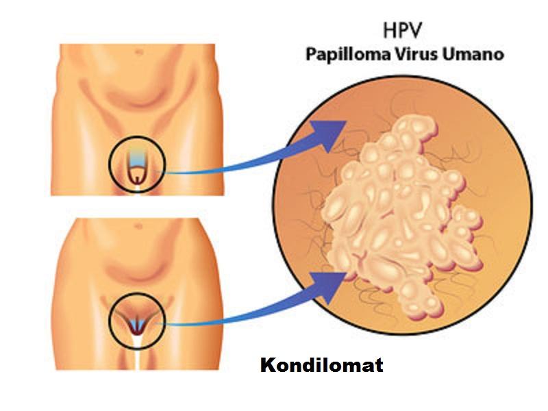 rimedi naturali per papilloma virus