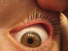 papilloma right upper eyelid icd 10 condyloma acuminata lsil