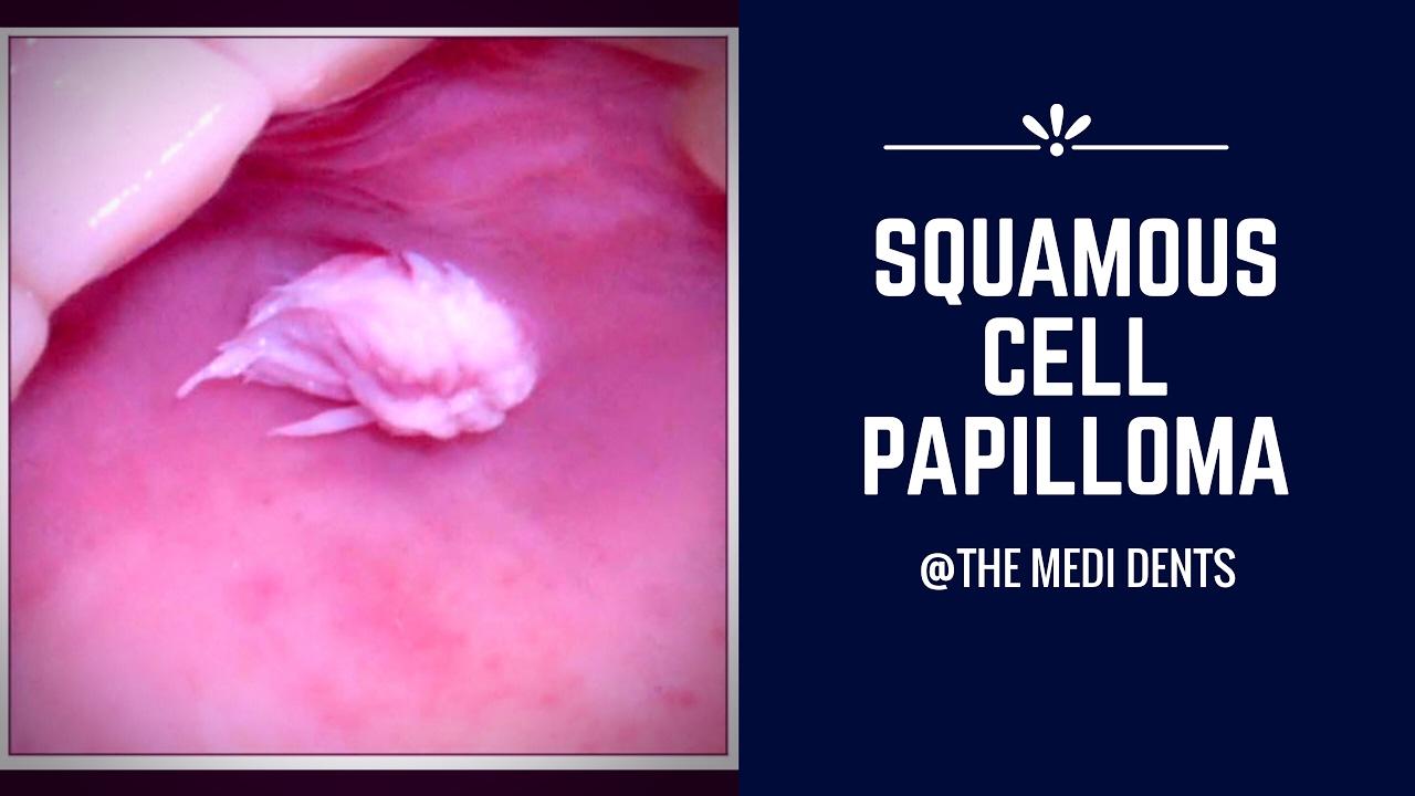 cancerul mamar nu e roz pret papillon zeugma belek yorumlar