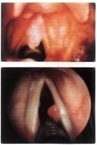 papilloma sulle corde vocali parazitii in corp