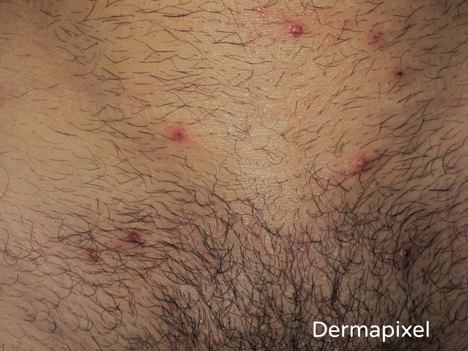 papilloma virus contagio piscina