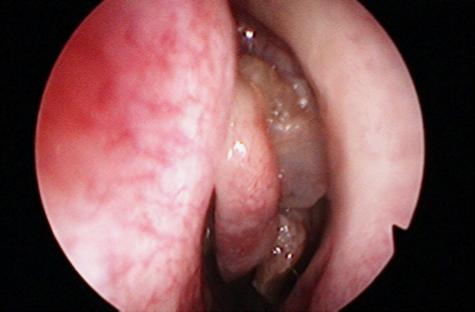 inverted papilloma nasal mri