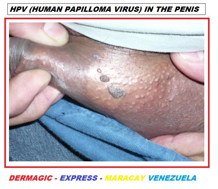 virus del papiloma genotipos helmintox 250 mg kaufen
