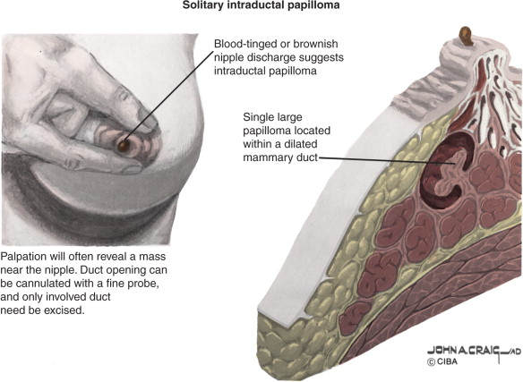 papillomatosis discharge)