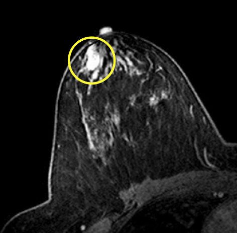 papillomatosis breast mri hpv virus lip