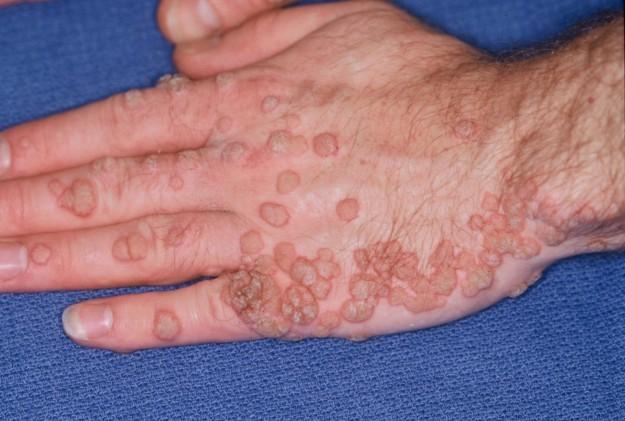 papillomavirus benigno