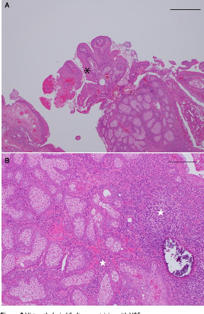 papillomavirus gland