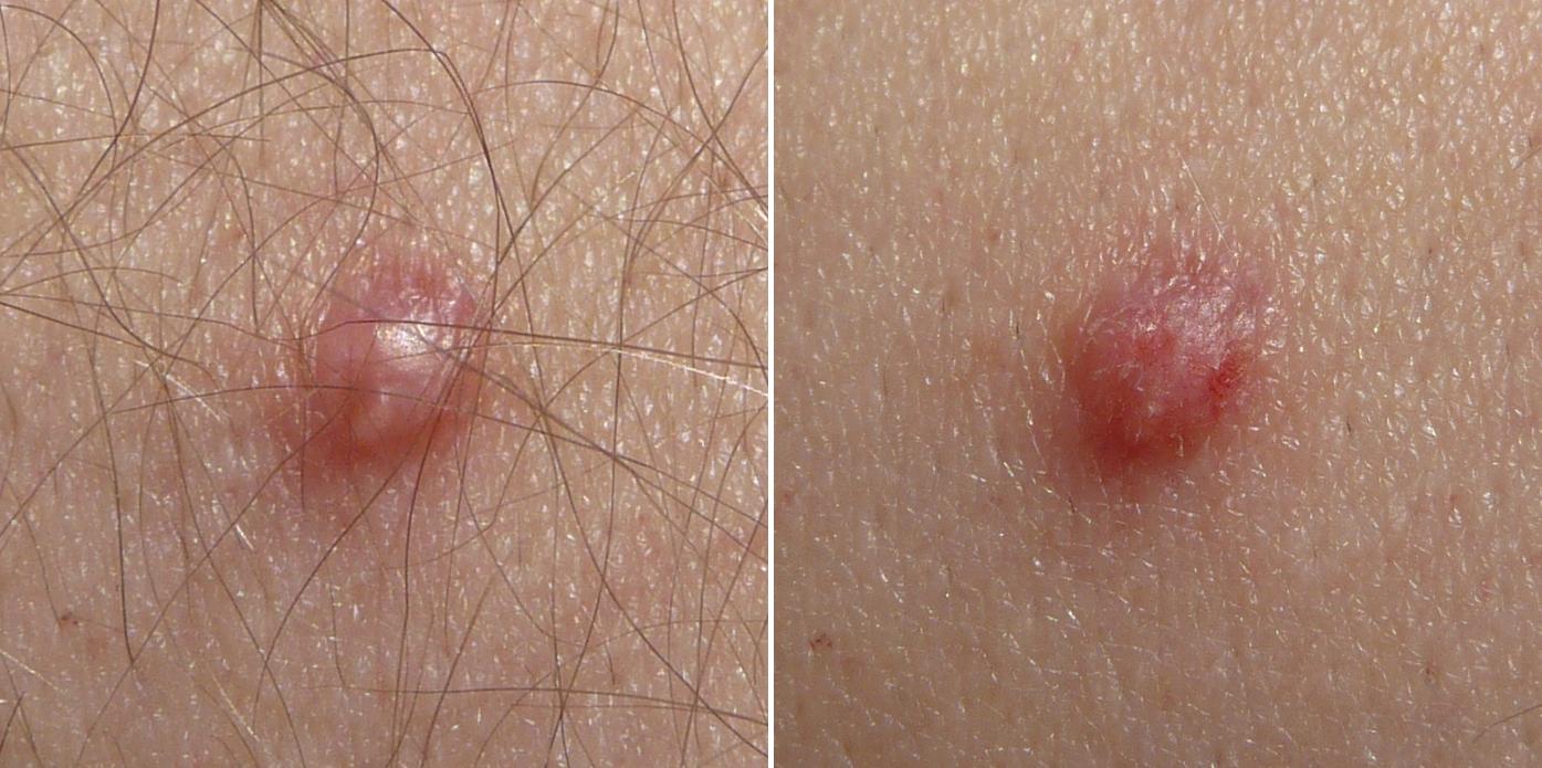 papillomavirus humain peau