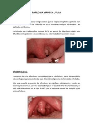 papiloma em uvula hpv positif colposcopie normale