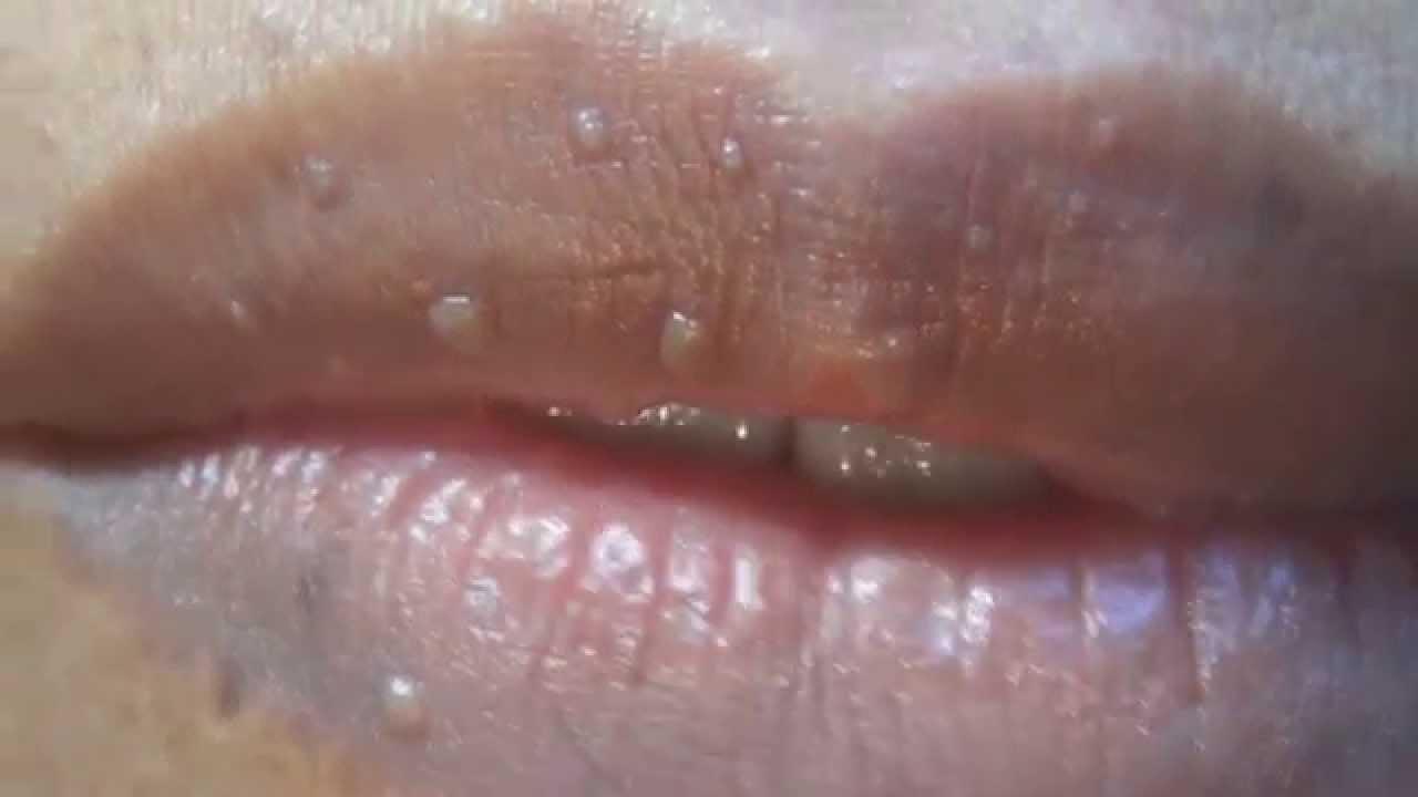 papiloma en los labios de la boca