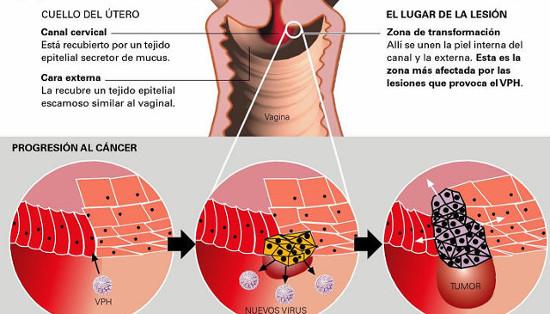 papiloma es cancer