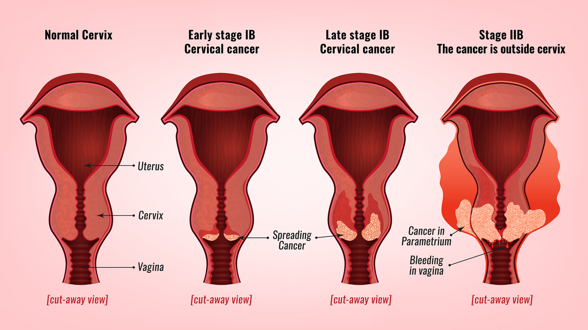 cancer de col uterin plan de ingrijiri