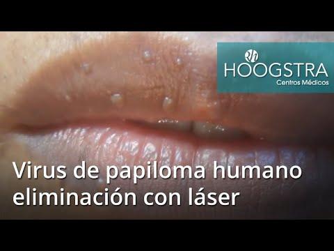 papiloma humano laser cancer uterin fibrom