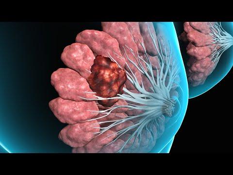 hpv (human papillomavirus) (common warts)