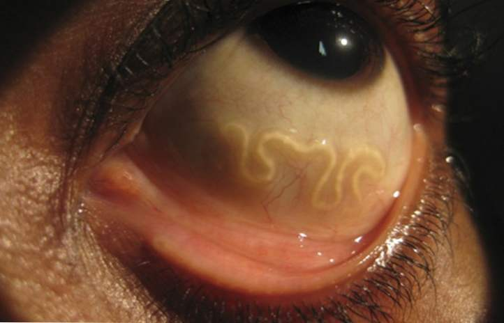 squamous papilloma of nose