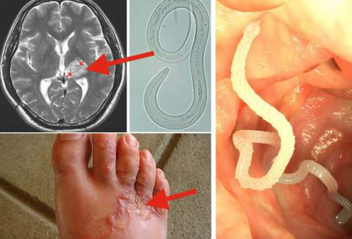 paraziti ai corpului uman hpv warts getting worse