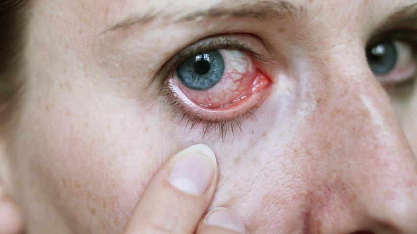 paraziti care afecteaza ochiul hpv impfung kosten wien