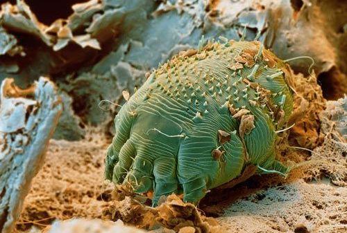 Cum sa va curatati corpul in mod natural de parazitii intestinali