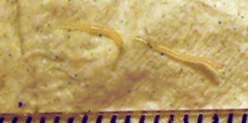 enterobius vermicularis reproduction hpv virus review