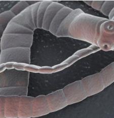 gastrita flatulenta papilloma virus uomo cura