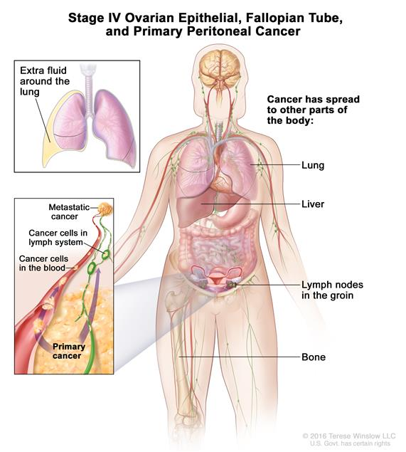peritoneal cancer late stage