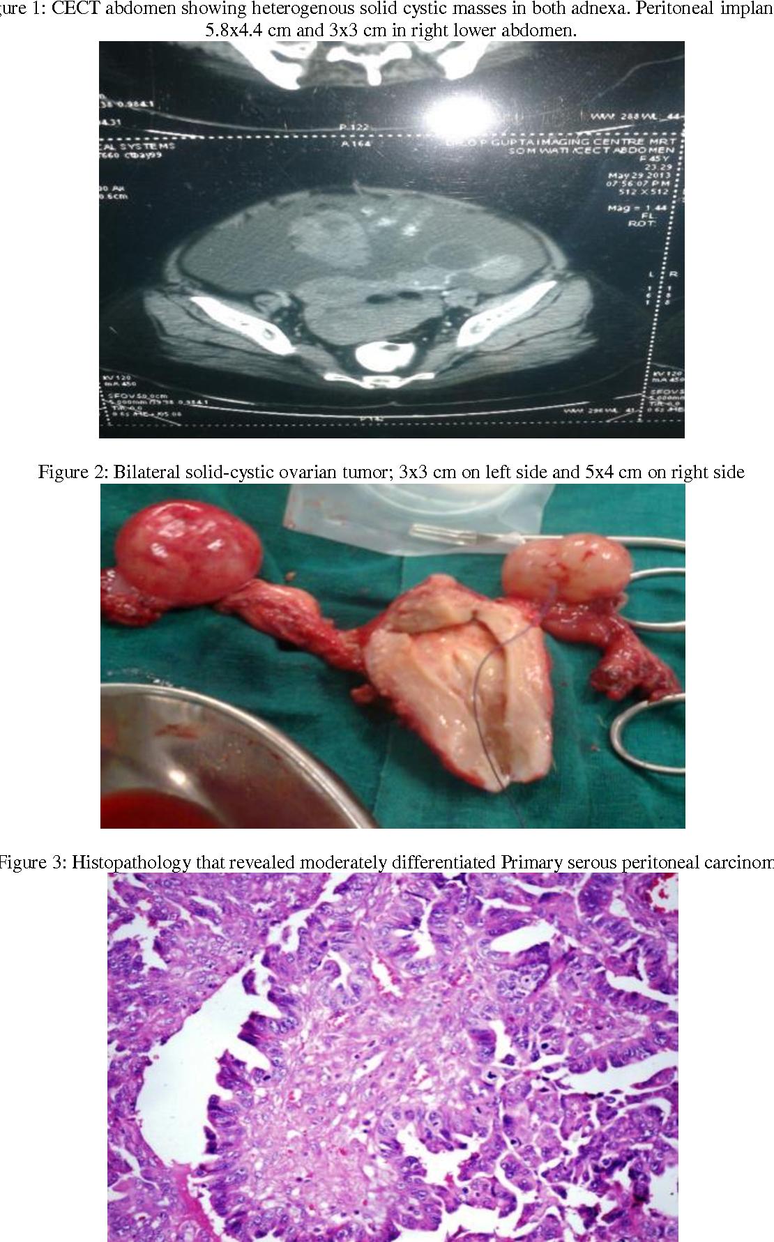 peritoneal cancer man