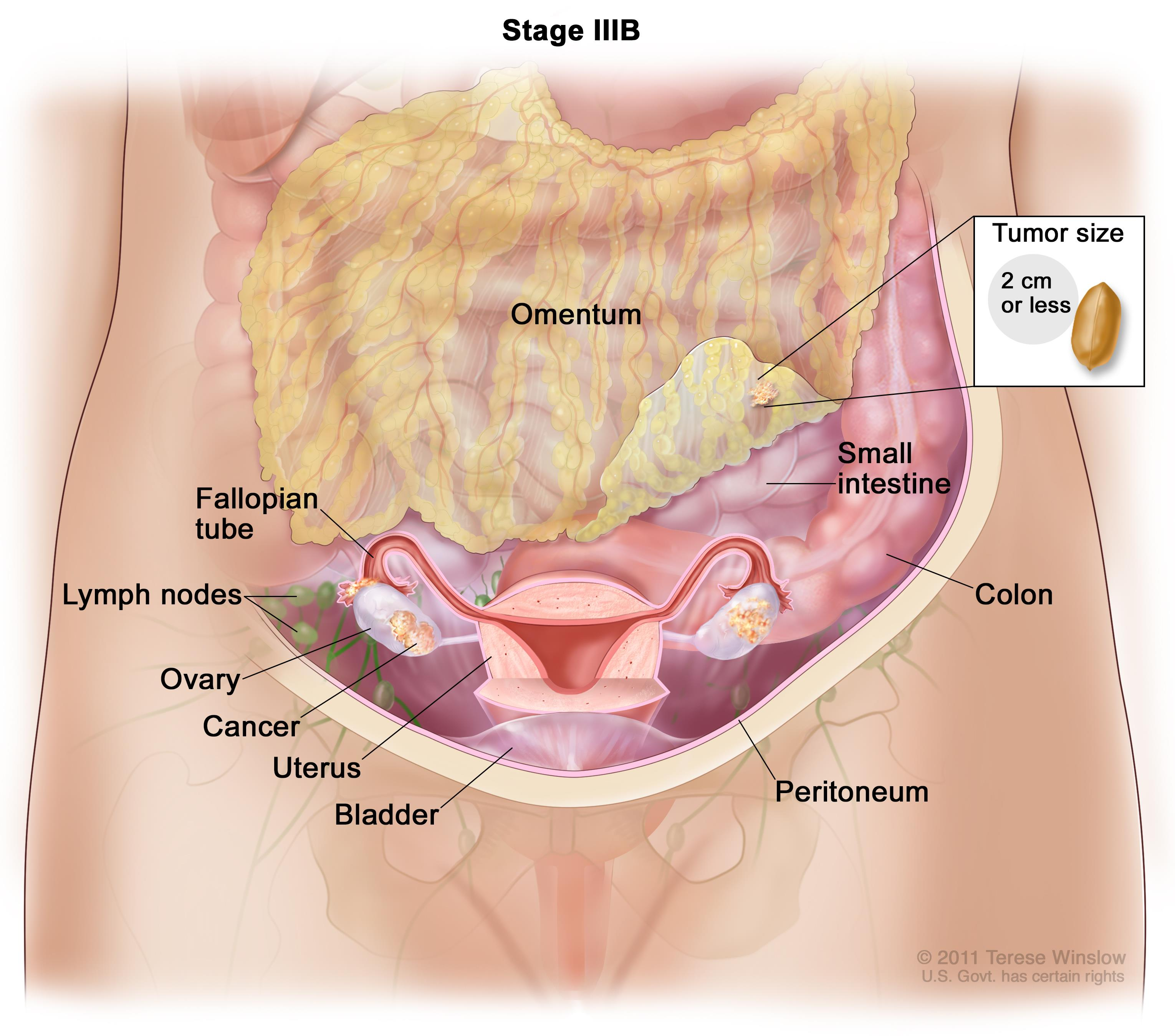 cervical cancer hpv statistics intraductal papilloma in both breasts