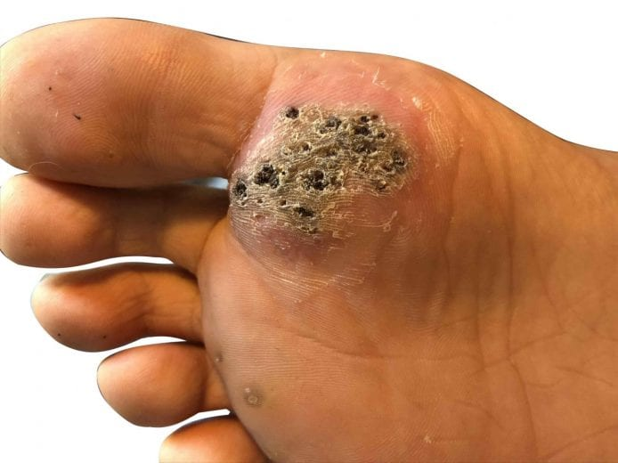 planters wart on foot causes