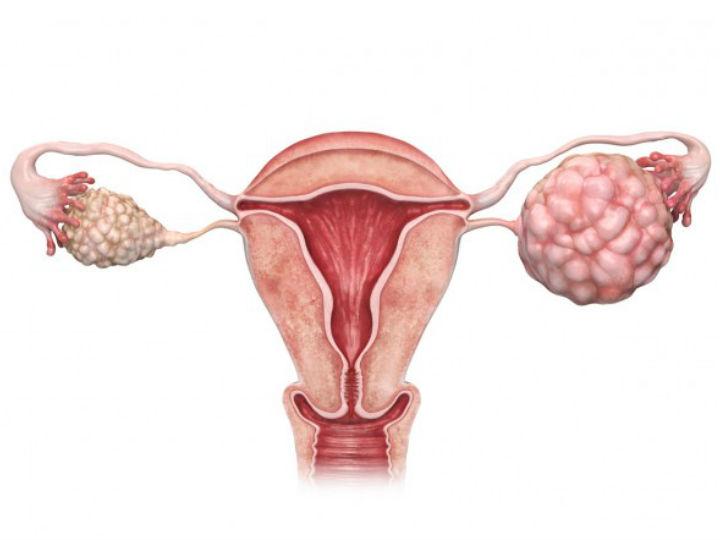 que es cancer al utero papilloma inverso nasale