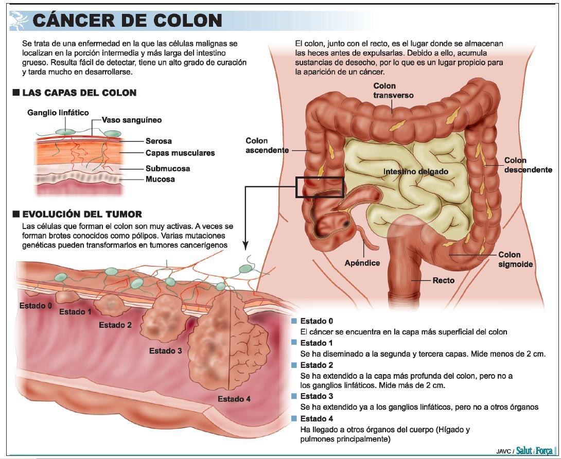 que es cancer colon how to remove a papilloma