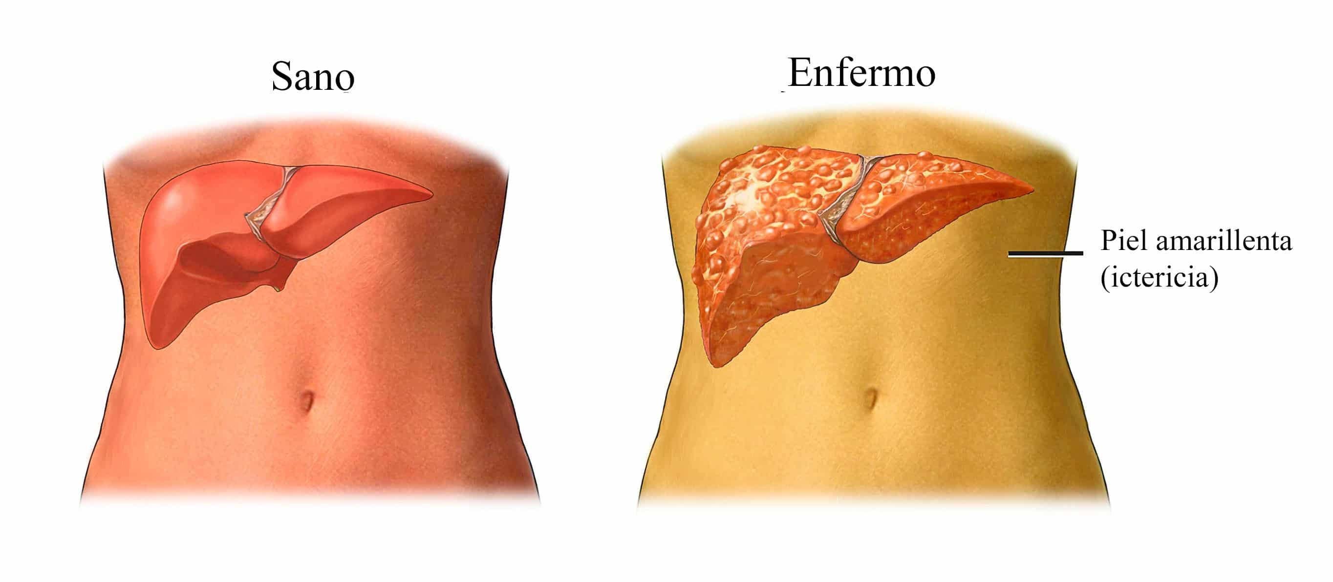 que es cancer hepatico papillon zeugma tripadvisor