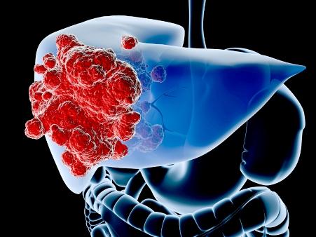 que es cancer hepatico