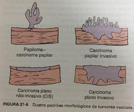 simfiza pubiana