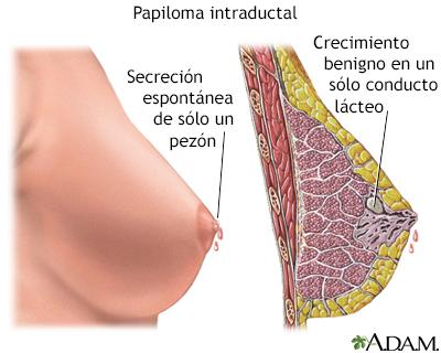 que es papilomas intraductales vaccino x il papilloma virus
