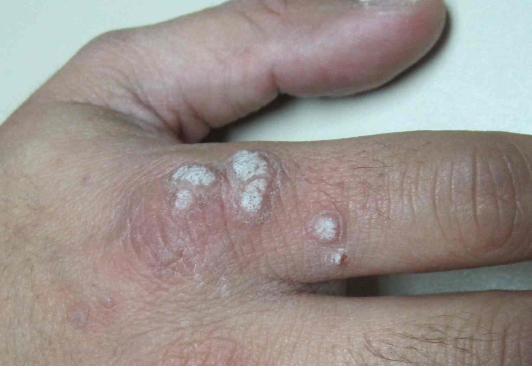 medicamento para virus del papiloma humano en hombres wart on foot palm