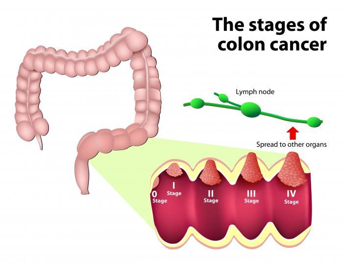 human papillomavirus (hpv) causes cancer colon pet scan