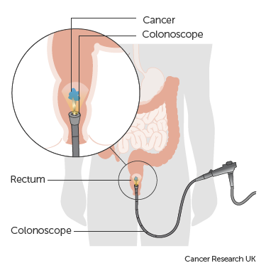 rectal cancer of