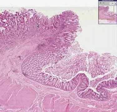 hpv high risk pool anemie netratata