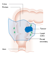 rectosigmoid cancer surgery